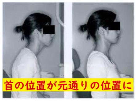 歪んだ首の位置