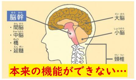 脳幹を圧迫